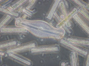 400x Magnification